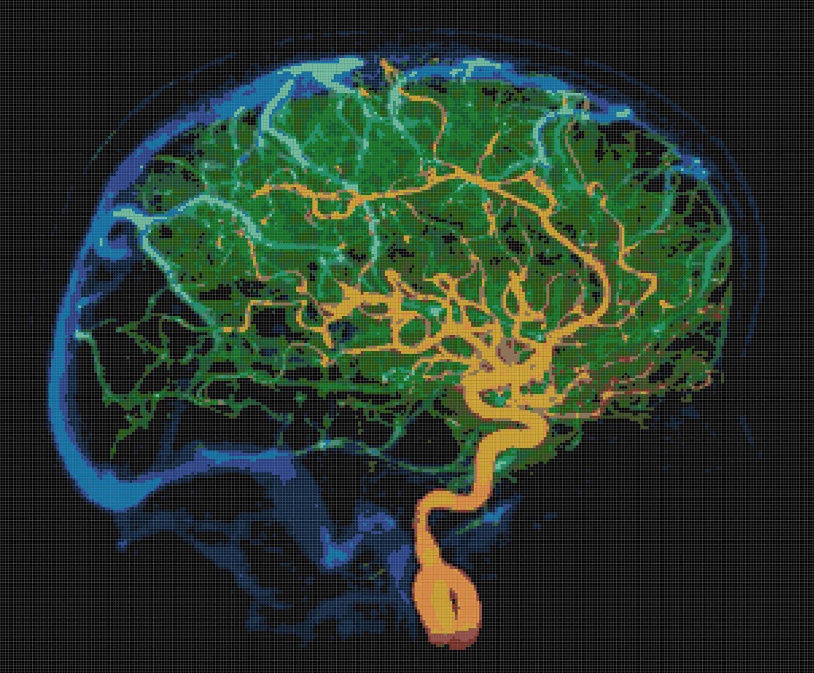 Brain Blood Vessels Cross-Stitch Pattern https://www.etsy.com/listing/210943795/brain-blood-vessels-pdf-handmade-cross?ref=shop_home_active_1